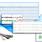 holter-software